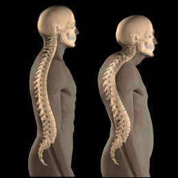 stress affects posture